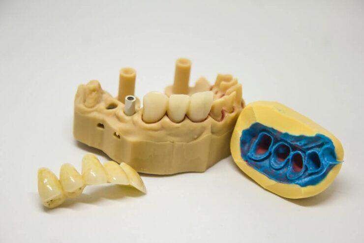 Jaki smoczek polecają ortodonci?